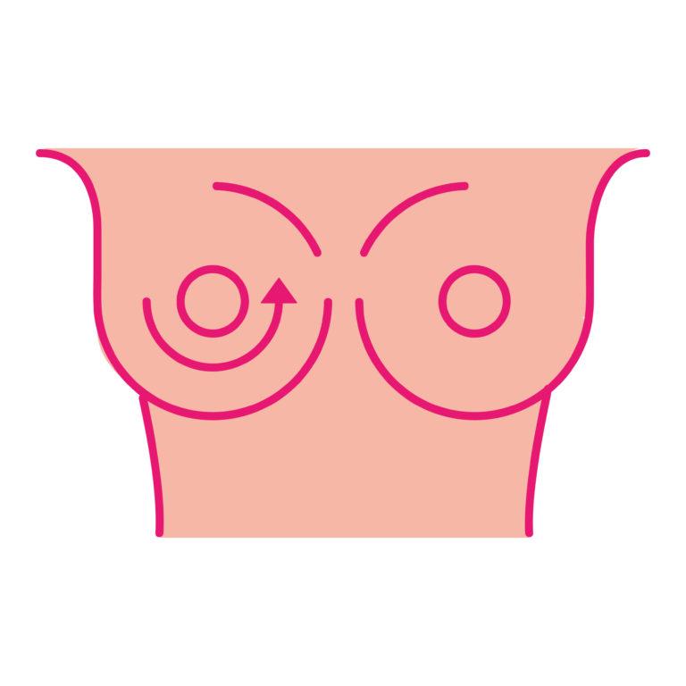 My Breast My Health Breast Examination